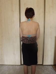 Шейный остеохондроз лечение можно ли греть