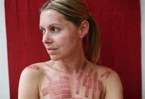 scars « BestOfBothWorldsAZ.com