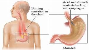 maagzuur reflux