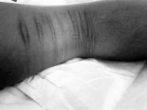 self-harm | Brown Girl In a Ring