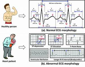 Example Of Normal And Abnormal Ecg Morphologies