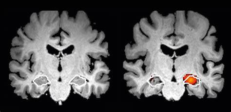 Die beiden größten Irrtümer über Alzheimer Demenz