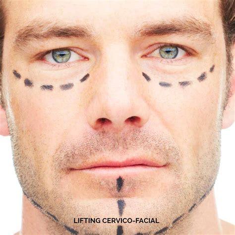 Dr Vasse  Chirurgie Esthétique Toulouse  Lifting Cervico