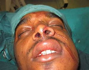 Avulsions result in a cut deep enough to leave a piece of ...