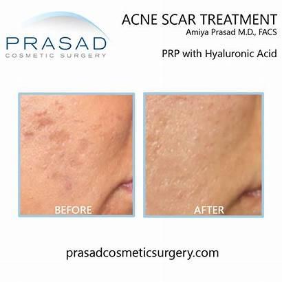 Prp Skin Acne Scars Regenerative Acell Treatments