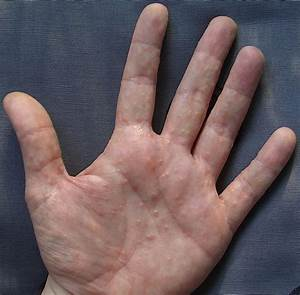 Lesson: Overview of, plaque, psoriasis, treatment