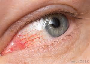 Eye infections (Ocular Infections) Infections