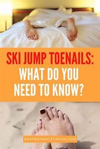 Nail Health 101  Complete Guide To Ski Jump Toenails