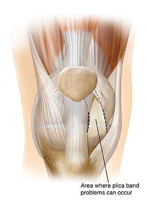 Common Kneecap (Patella) Problems   Saint Luke's Health System