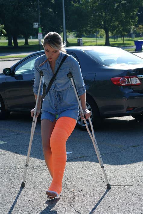 177 Best Leg Cast Images On Pinterest Leg Cast Broken