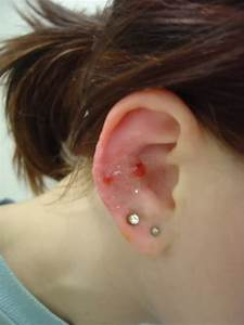 Double Lobes And Snug Piercing On Right Ear