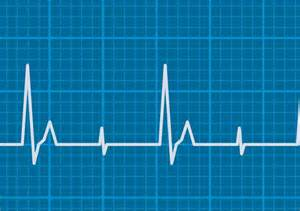 Heart Pulse Rate Chart