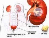 Гипертония причины камни в почках