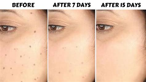 how to remove spots acne scars pigmentation in just 7 days 100 effective