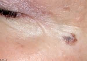 Early Stages Melanoma Skin Cancer Moles