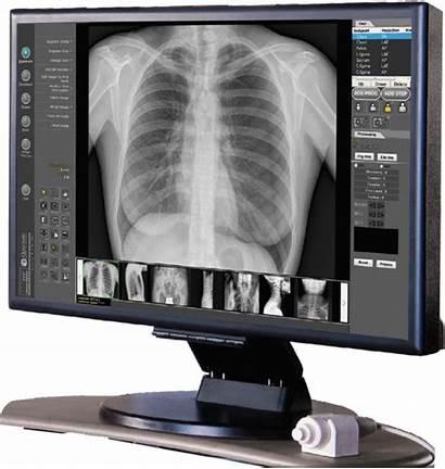 Imaging Radiografia Dr Raio Rayos Radiologia Monitor
