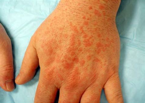 erythema multiforme recognition  management american
