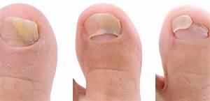 Почернение ногтя при грибке ногтей