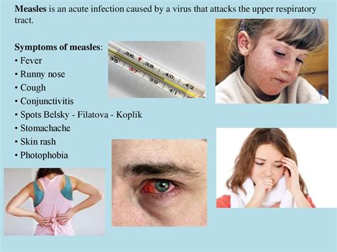 Measles Symptoms and Treatment