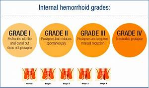 hemorrhoids stages Gallery