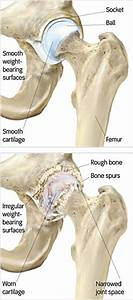 Causes Of Arthritis - Portland Hip Resurfacing