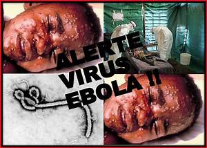 Ebola Fever – Just What Is it? | Today's News Reviewed