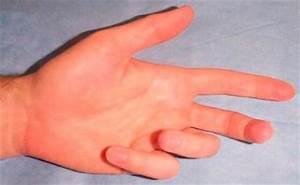 Артроз сустава большого пальца руки лечение