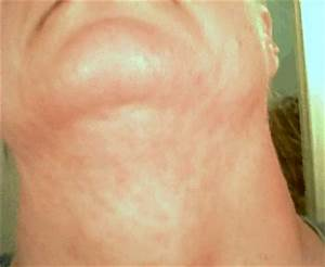 Bed bug rash on face for Bed bug hives