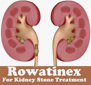 Rowatinex For Kidney Stone Treatment - MediMiss