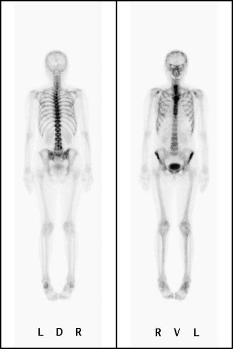 konventionelle nuklearmedizinische diagnostik szintigraphie
