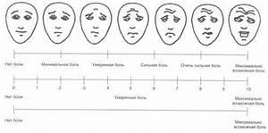 The Most Comprehensive Guide To The Headache Shram Kiev Ua