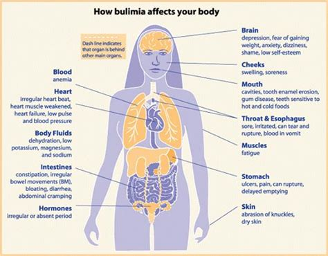 Bulimia Nervosa Signs, Symptoms, Treatment, And Selfhelp. Planet Signs Of Stroke. Dementia Signs. Writing Signs. Creative Glass Signs. Sagittarius Signs Of Stroke. Dedication Signs. Star Wars Church Signs. Taxiway Signs