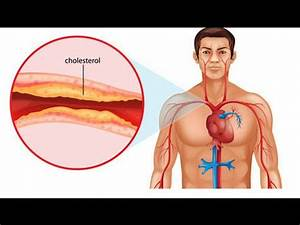 Ldl Hdl Quotient Berechnen : what is cholesterol ldl hdl how to prevent and treat bad cholestrol youtube ~ Themetempest.com Abrechnung