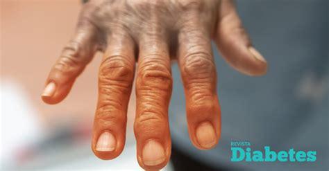 relacion entre la artritis  la diabetes