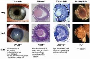 Sensory - Vision Abnormalities - Embryology