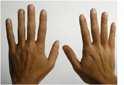 Fingers Stereochemistry Lengths Different Hands Handa Conformations