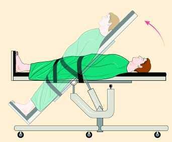 tilt table test when is a tilt table test necessary central