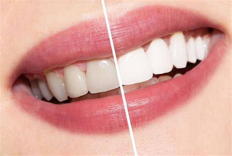 does teeth whitening work the dental guide