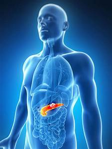 Pancreatic, Cancer, Chemotherapy, Treatment, Could, Be, Boosted, With, Gold
