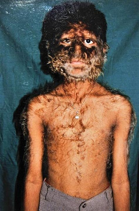 wolf boy werewolf syndrome wolves raised child patil pruthviraj seen rare hair genetic tattoos torso ever indian condition 2009 fire
