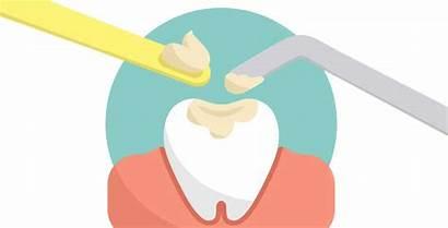 Fillings Types Filling Dental Tooth Dentist George