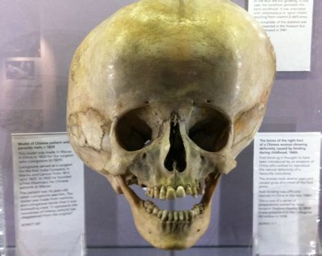 le hunterian museum londres calling