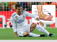 Cristiano Ronaldo injury UPDATE ExPremier League doctor