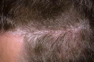 Псориаз красные пятна на голове лечение