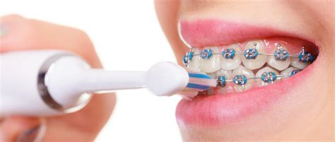 How Do I Remove Food From My Braces Without Brushing?