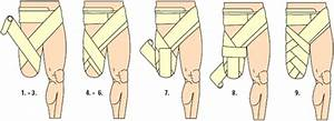 Stump Bandaging For Above And Below Knee Amputation