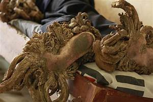'Tree man' Dede Koswara who suffers from rare condition ...