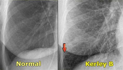 kerley  lines chf radiology pinterest heart