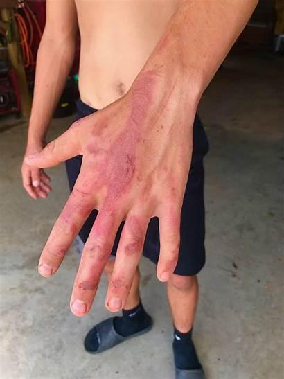 Catfish Noodling Hand Hands Gage Hook Oklahoma