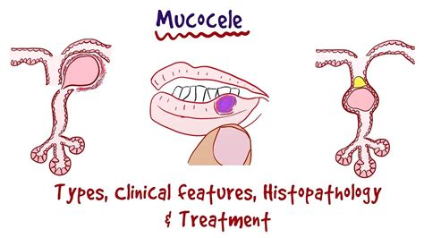 Mucocele - Types, Clinical Features, Histopathology ...